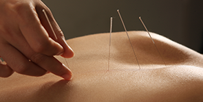 Sabine Korting - Akupunktur
